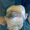 Hair Loss – Chemotherapy – Hair Loss | 脱发 | Rambut Gugur